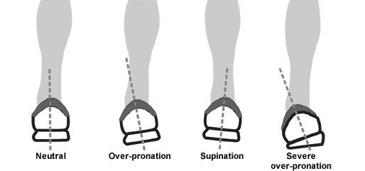 Pronation-1